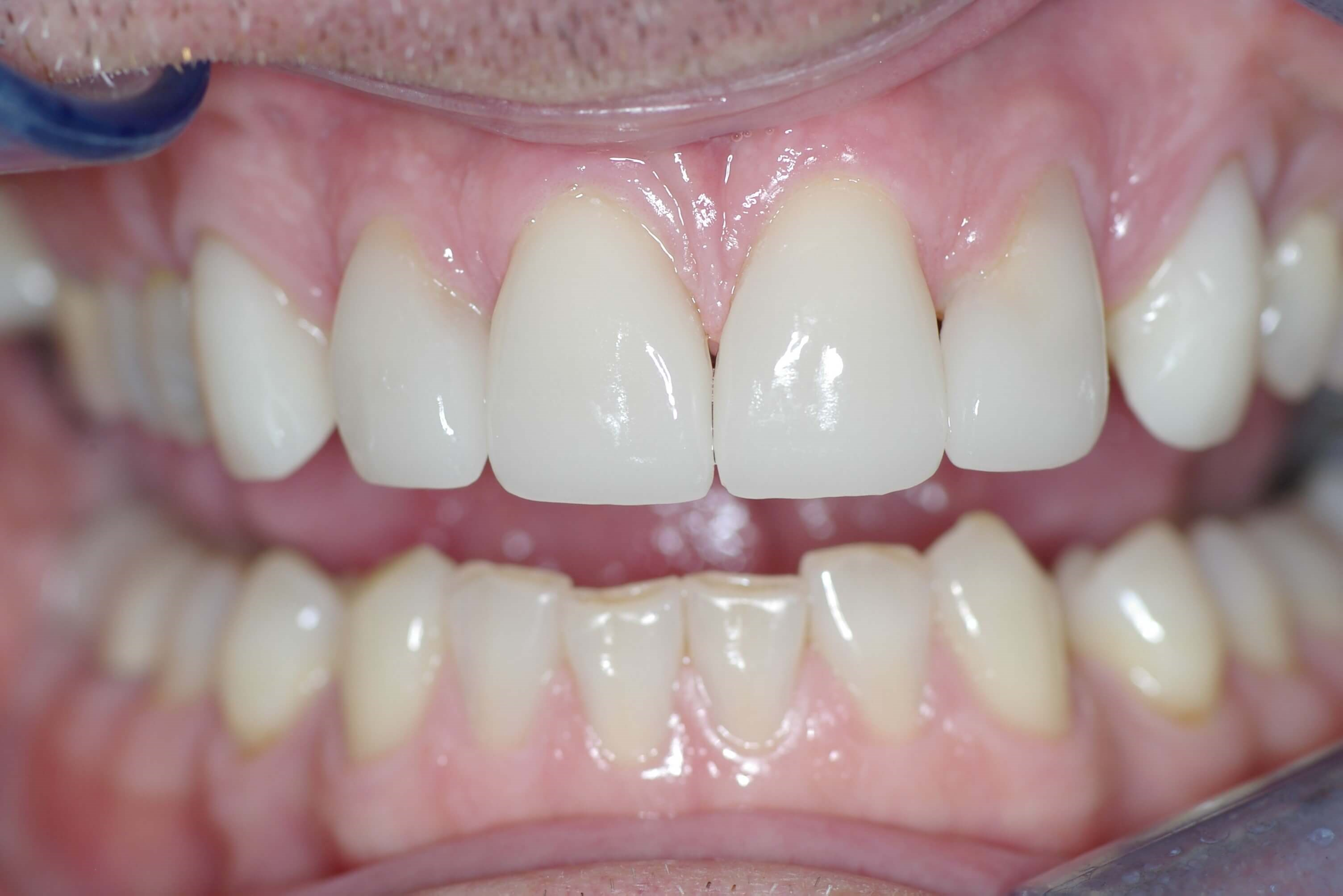 Del Mar Smile Makeover After