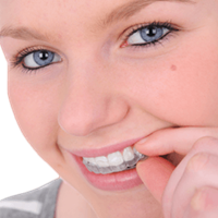 ClearCorrect™ Aligners